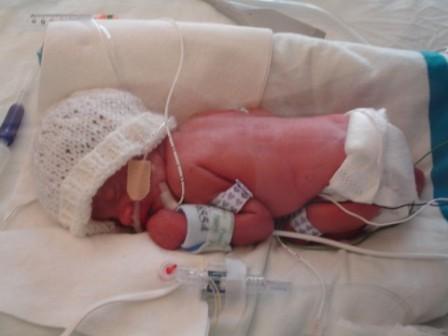 Babies born early